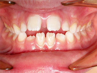 Ortodonzia Posturale