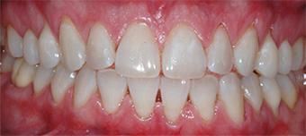 Sbiancamento dentale, dopo il trattamento