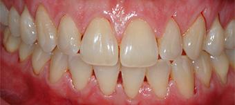 Sbiancamento dentale, prima del trattamento